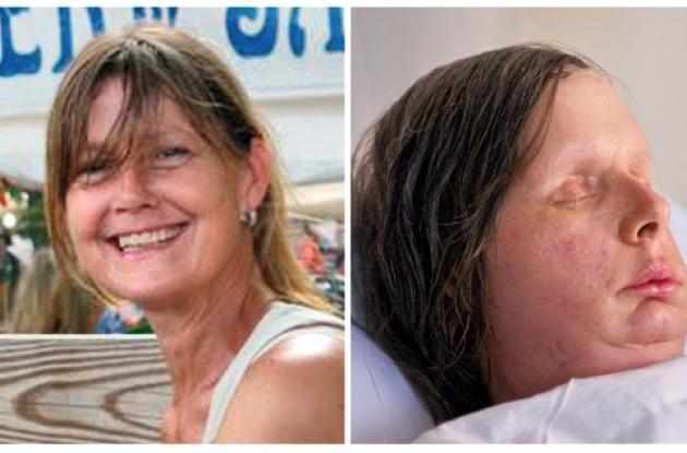 transplante de cara