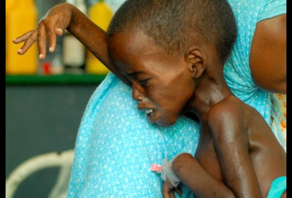 hambruna que azota a Somalia