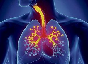 La termoplastia bronquial, un salvavidas para el asma.